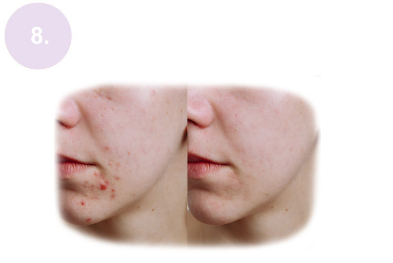 Crystal Clear Pro-Active Acne Treatment Worthing