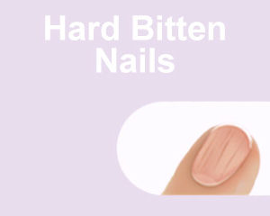 Hard Bitten Nails