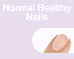 Normal Healthy Nails