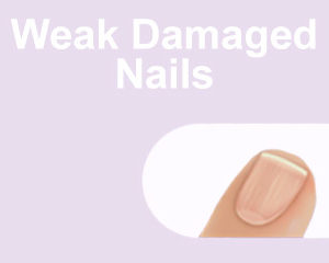 Weak Damaged Nails