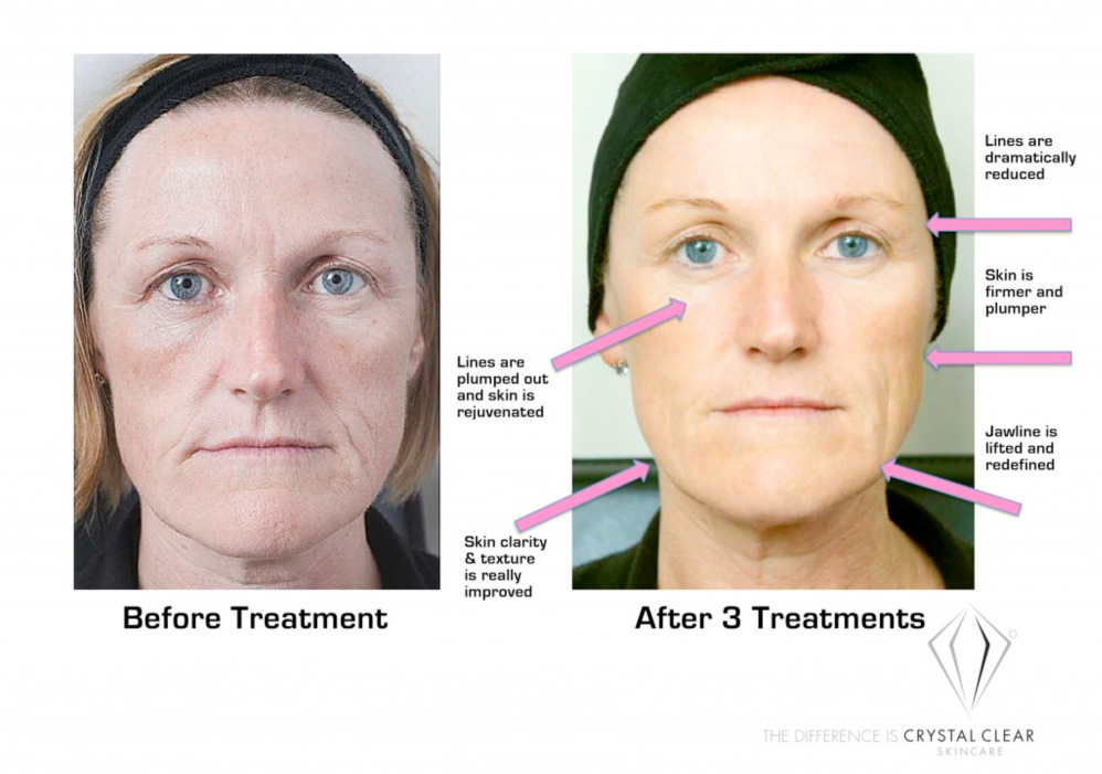 Comcit Facial Treatments Worthing
